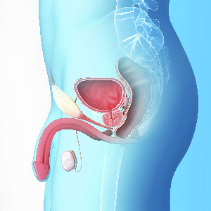 La traite de la prostate et ses dangers