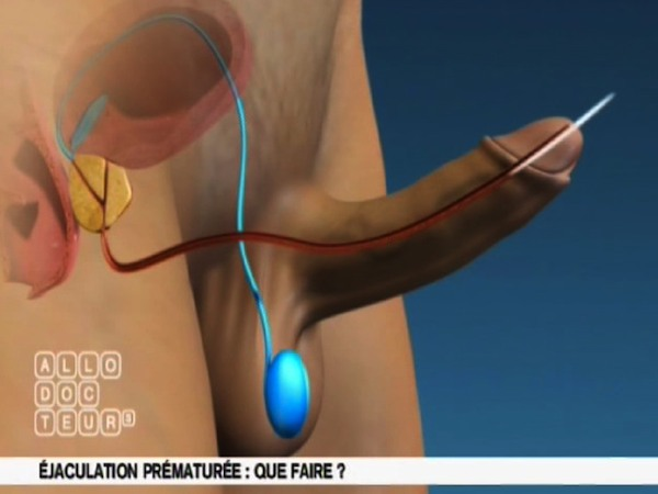 Utilisation de la masturbation pour mettre fin à vos problèmes d'éjaculation précoce